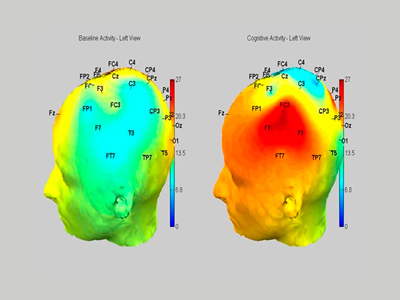Image comparing baseline brain activity with cognitive activity